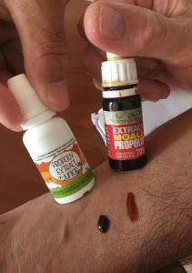 tratament propolis